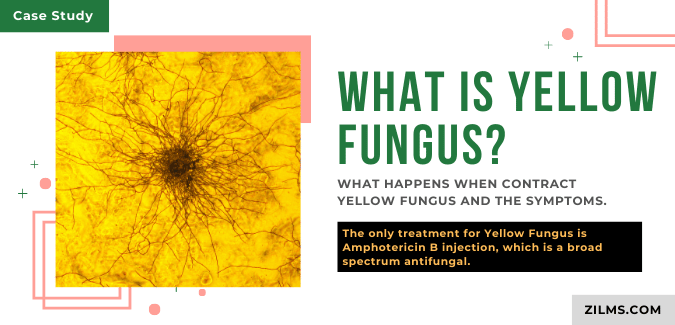 WHAT IS YELLOW FUNGUS